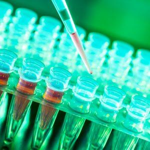 SERVİKAL KANSER  TARAMA TESTİMDE HPV  SAPTANDI